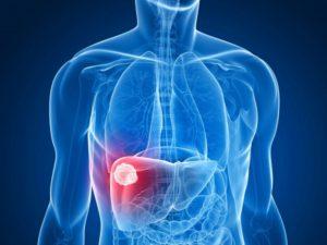 Traitement percutane des tumeur du foie